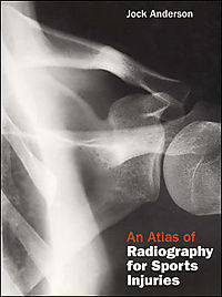 An Atlas of Radiography for Sports Injuries