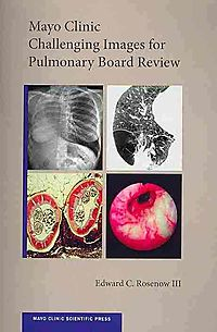 Mayo Clinic Challenging Images for Pulmonary Board Review