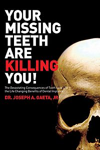 Your Missing Teeth Are Killing You!