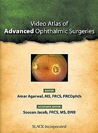 Video Atlas of Advanced Ophthalmic Surgeries