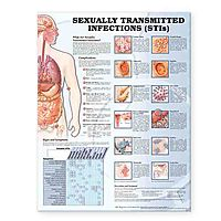 Sexually Transmitted Infections (stis) Chart