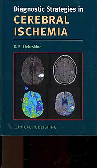 Diagnostic Strategies in Cerebral Ischemia