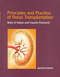 Principles and Practice of Renal Transplantation