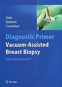 Vacuum-Assisted Breast Biopsy With Mammotome